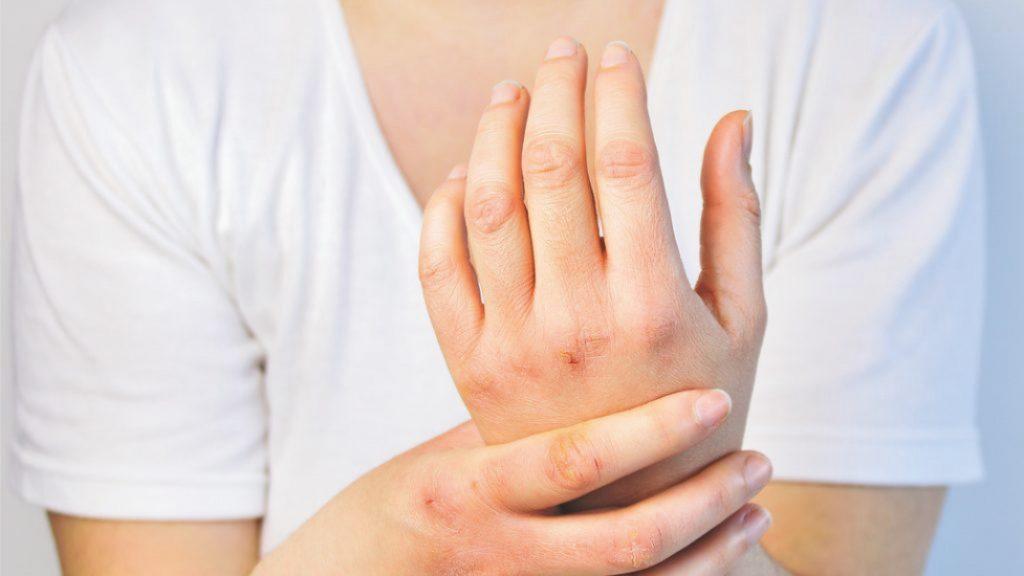 Oštećene ruke